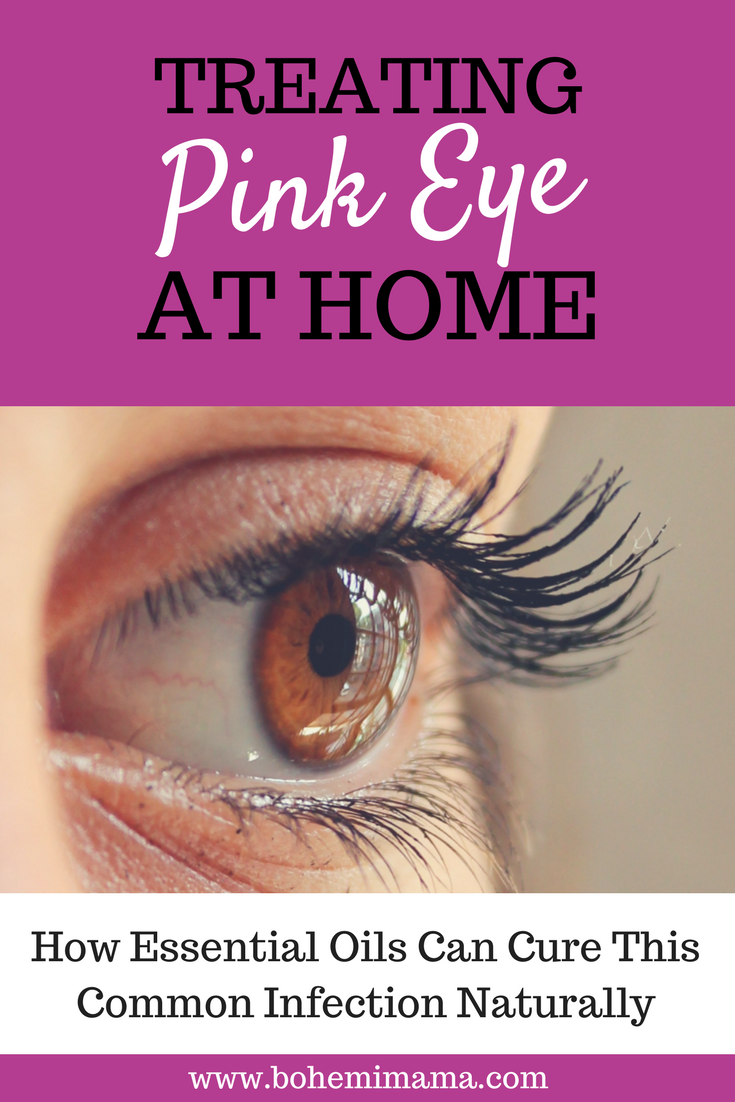 Treating Pink Eye At Home | Pink eye is a very common eye infection which sometimes results in antibiotics and eye creams. Learn how to treat it naturally using one simple essential oil. Click the image to learn more.